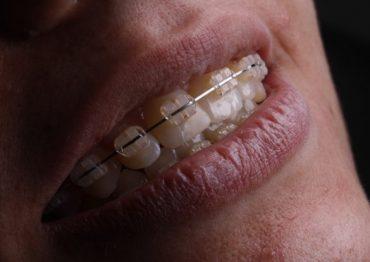 As principais dicas para uma boa Higiene Oral com Aparelho Dentário Fixo