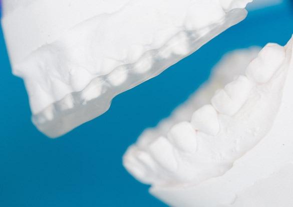 Os problemas na articulação da mandíbula – Dor na ATM