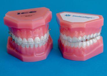 A partir de que idade se pode colocar Aparelho Dentário?