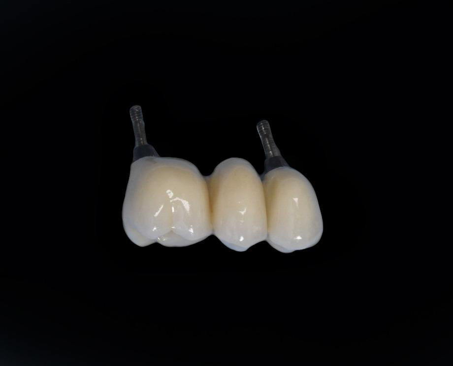 Ponte de Três Dentes - Clínica Delille
