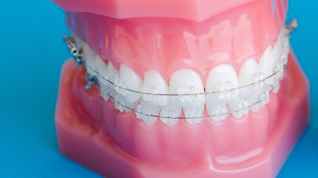 aparelho dentário cerâmico