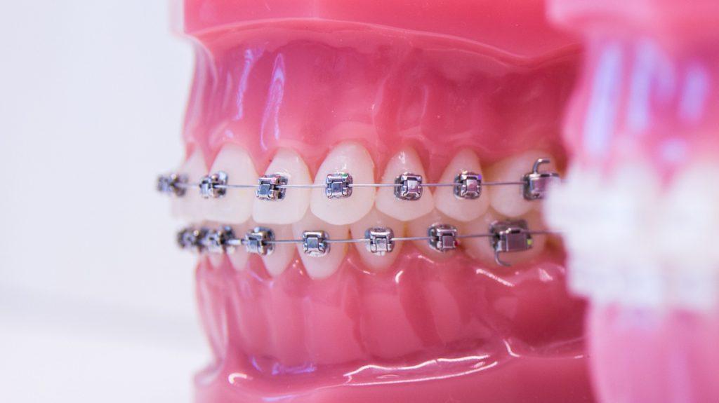 aparelho dentário metálico