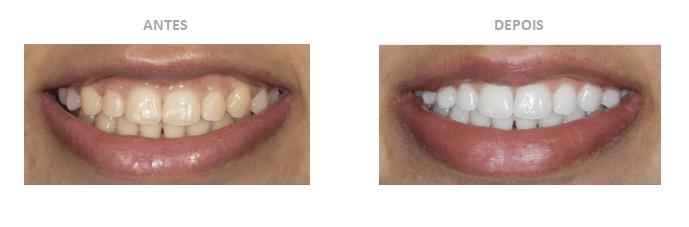 caso de branqueamento dentário em casa