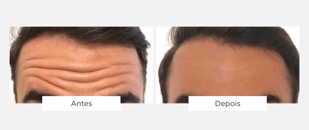 tratamento de estética facial 1