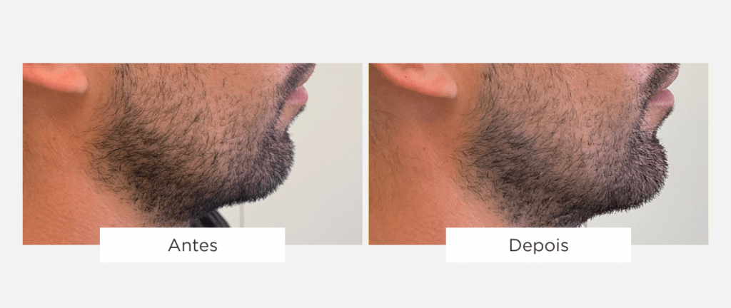 tratamento de estética facial 2