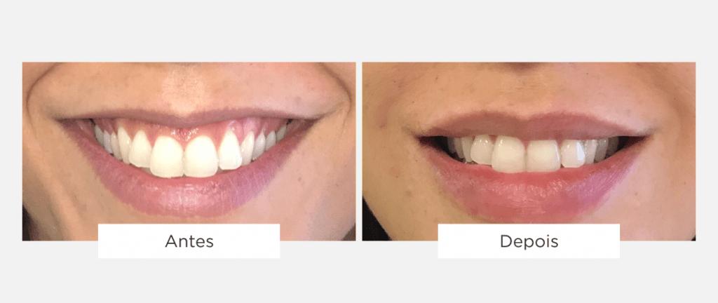 tratamento de estética facial lábios